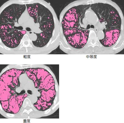 肺気腫 ステージ